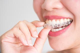 歯科医院で作れるマウスピースって? | 神戸元町の歯医者なら神谷歯科 ...